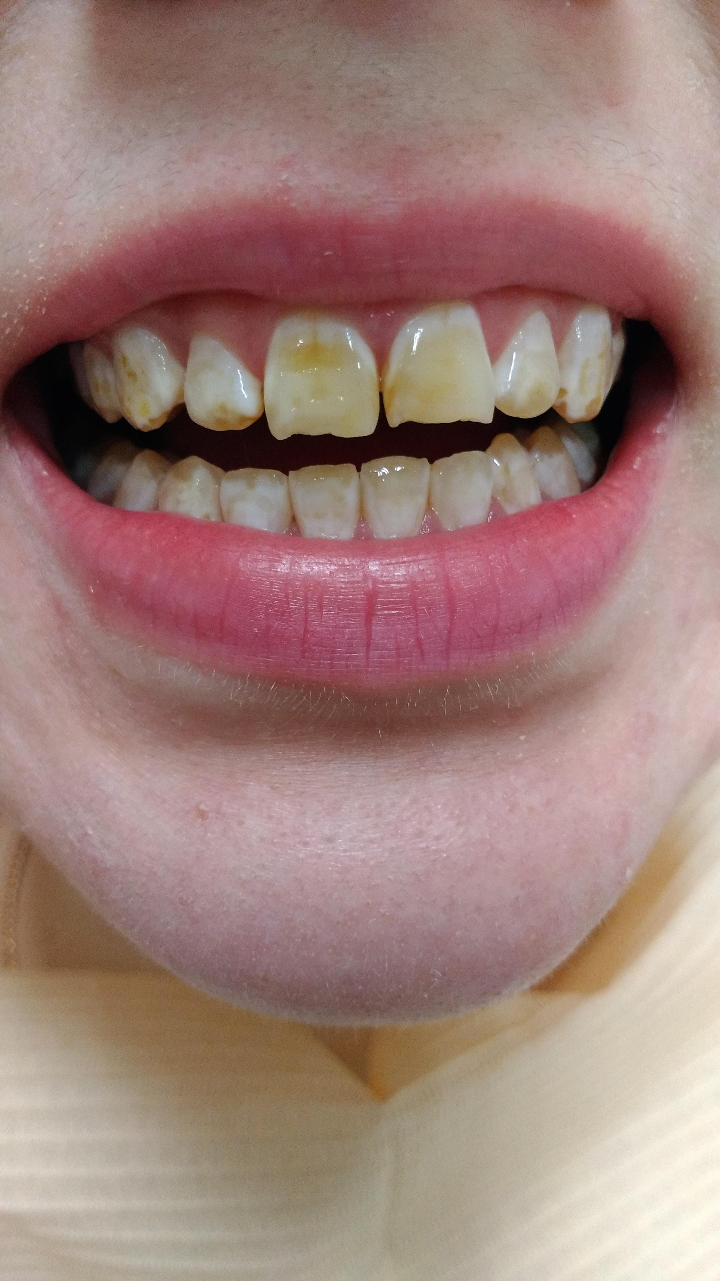 Виниры для зубов Рязань, наращивание зуба Рязань