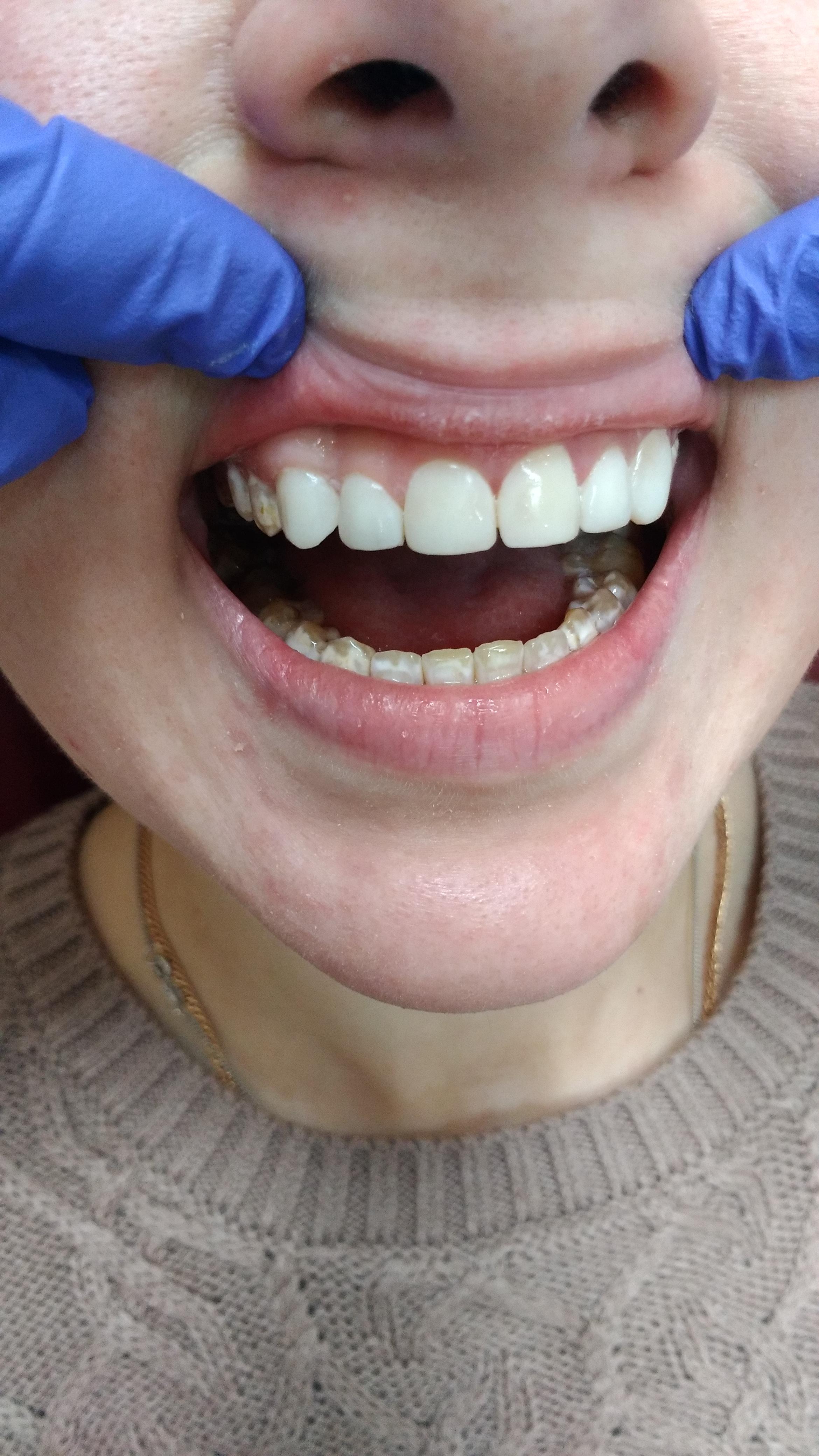 Реставрация Самохиной С.П. Виниры для зубов Рязань, наращивание зуба Рязань