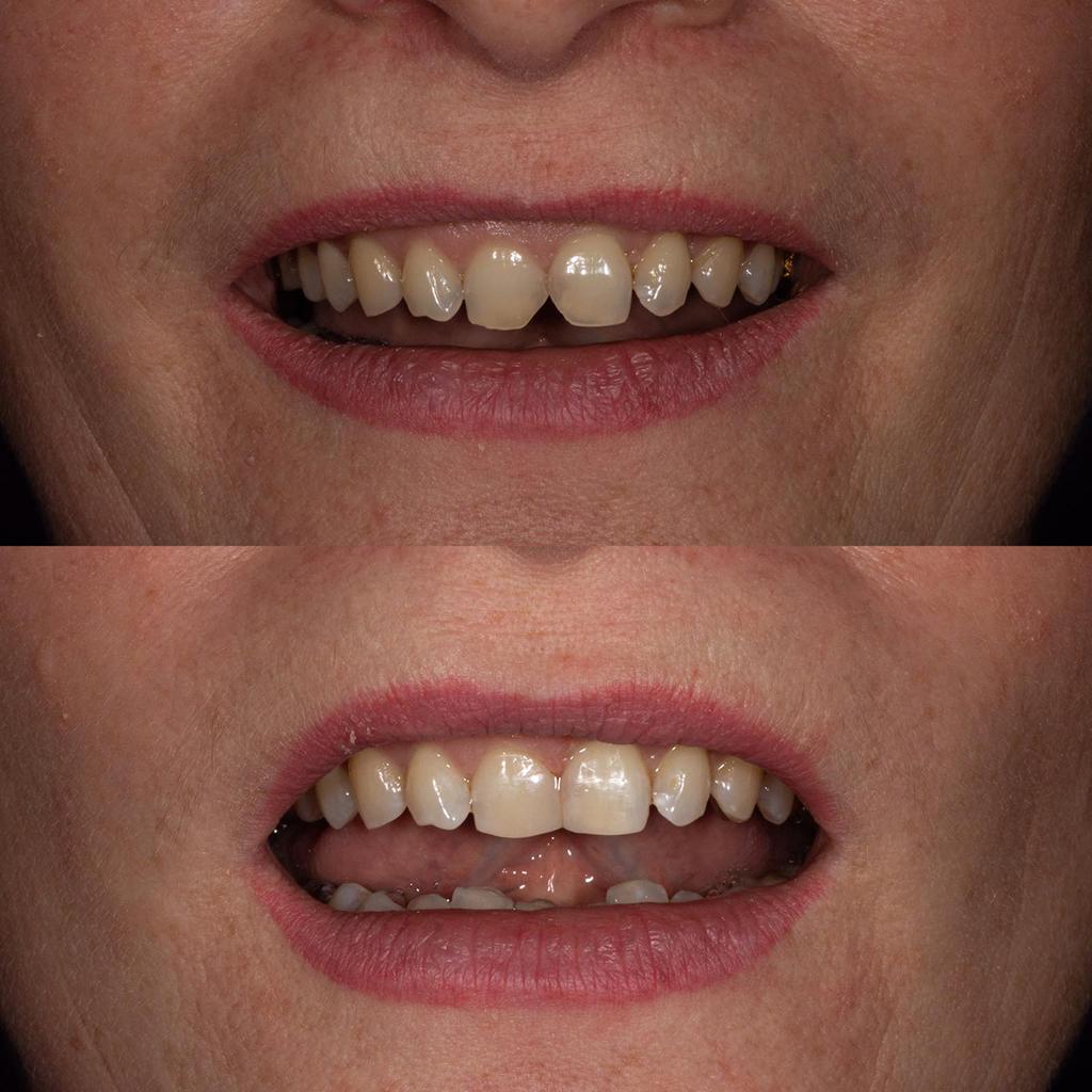 Работа Беловой Т.И. устранение дефекта режущего края передних зубов