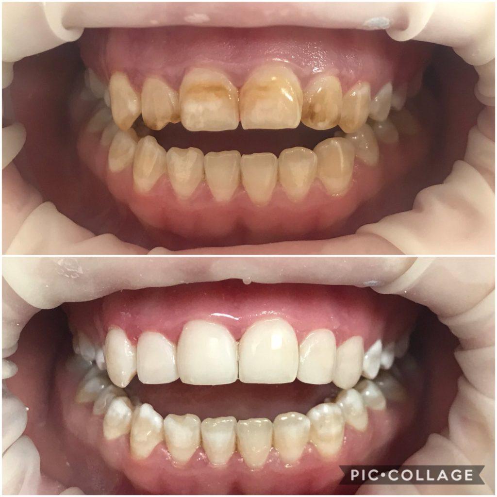 Абалян Г. Ю. Прямая реставрация фронтальной группы зубов при флюорозе