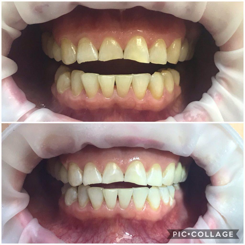 "Отбеливание зубов ""Amazing white"""